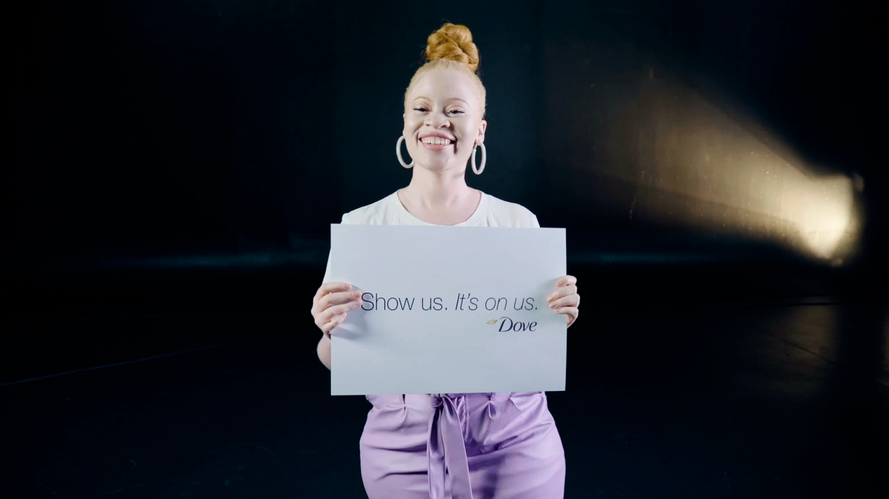 Dove inclusive model holding bord with Show us. It's on us.